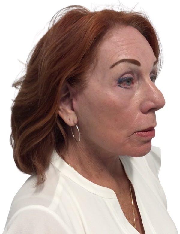 Facelift Gallery - Patient 13948537 - Image 6