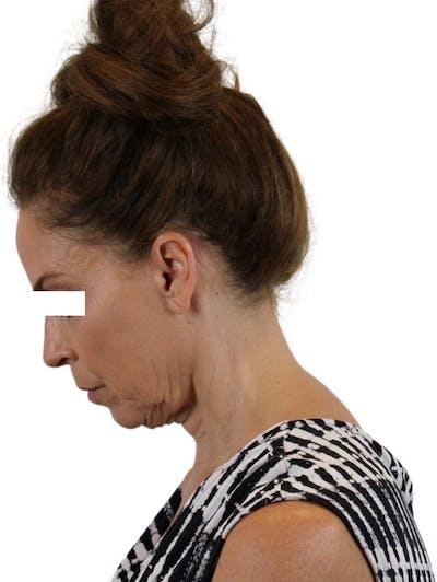 Facelift Gallery - Patient 13948536 - Image 8