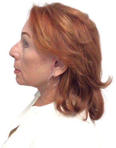 Facelift Gallery - Patient 13948537 - Image 10