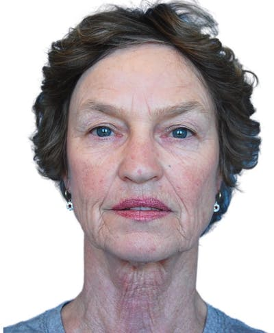 Facelift Gallery - Patient 13948541 - Image 1