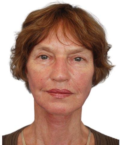 Facelift Gallery - Patient 13948541 - Image 2