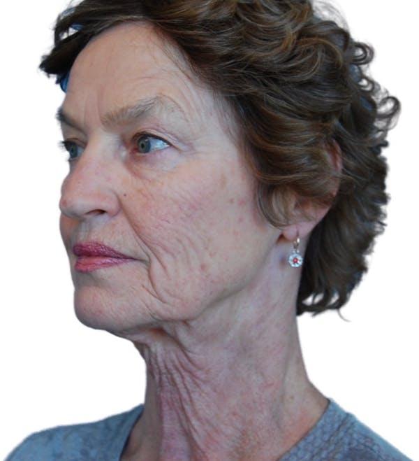 Facelift Gallery - Patient 13948541 - Image 3