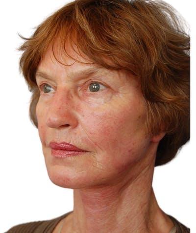 Facelift Gallery - Patient 13948541 - Image 4