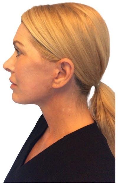 Facelift Gallery - Patient 13948540 - Image 6