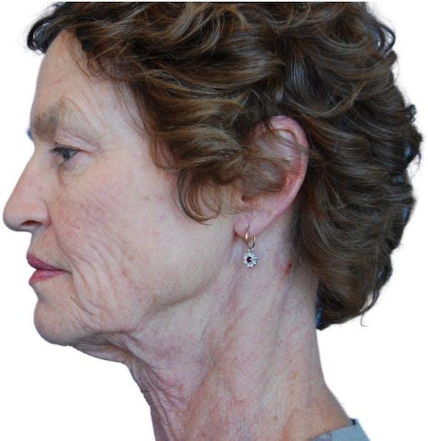 Facelift Gallery - Patient 13948541 - Image 5