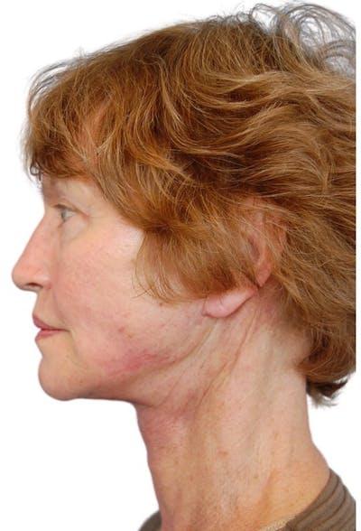 Facelift Gallery - Patient 13948541 - Image 6