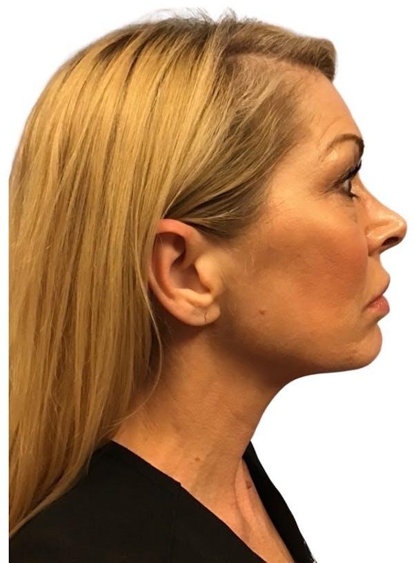 Facelift Gallery - Patient 13948540 - Image 7