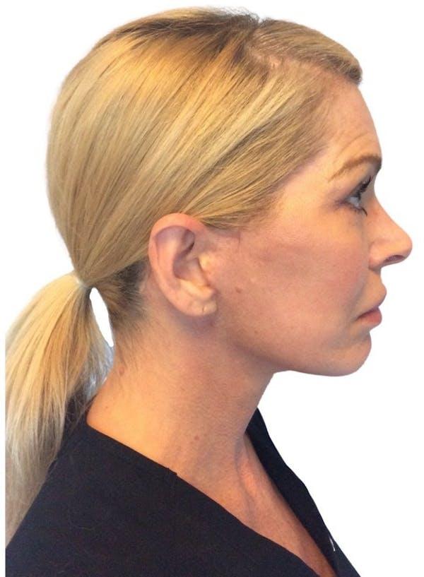 Facelift Gallery - Patient 13948540 - Image 8