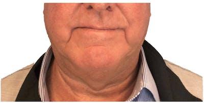 Necklift Gallery - Patient 13948542 - Image 1