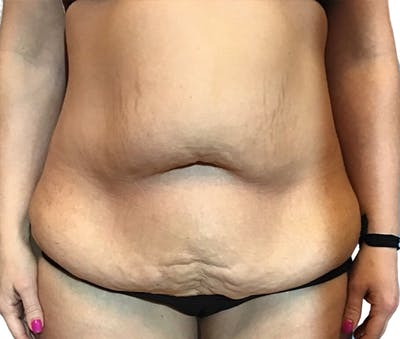 Abdominoplasty Gallery - Patient 16688827 - Image 1