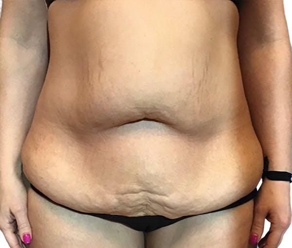 Abdominoplasty Gallery - Patient 16688827 - Image 1