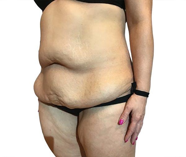 Abdominoplasty Gallery - Patient 16688827 - Image 3