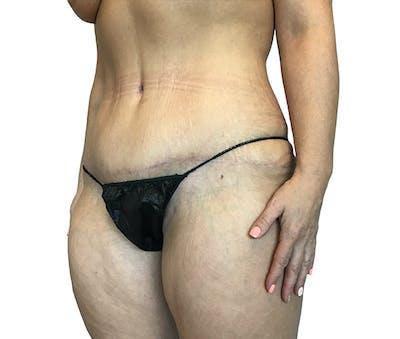 Abdominoplasty Gallery - Patient 16688827 - Image 4