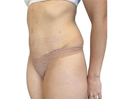 Abdominoplasty Gallery - Patient 18427947 - Image 4