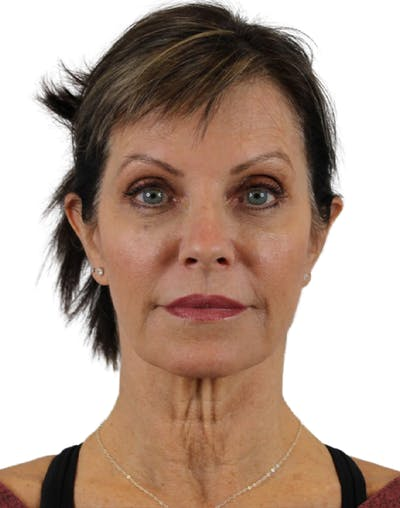 Facelift Gallery - Patient 24397141 - Image 1