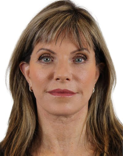 Facelift Gallery - Patient 24397141 - Image 2
