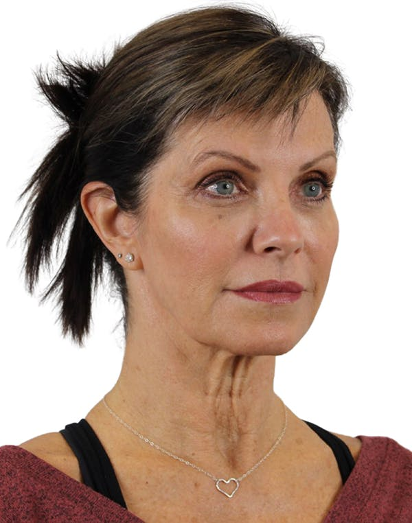 Facelift Gallery - Patient 24397141 - Image 3