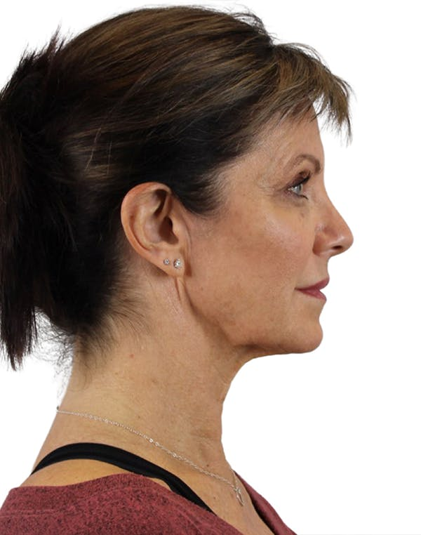 Facelift Gallery - Patient 24397141 - Image 5