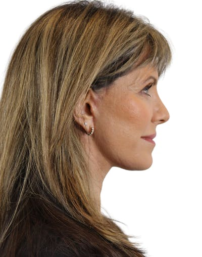 Facelift Gallery - Patient 24397141 - Image 6