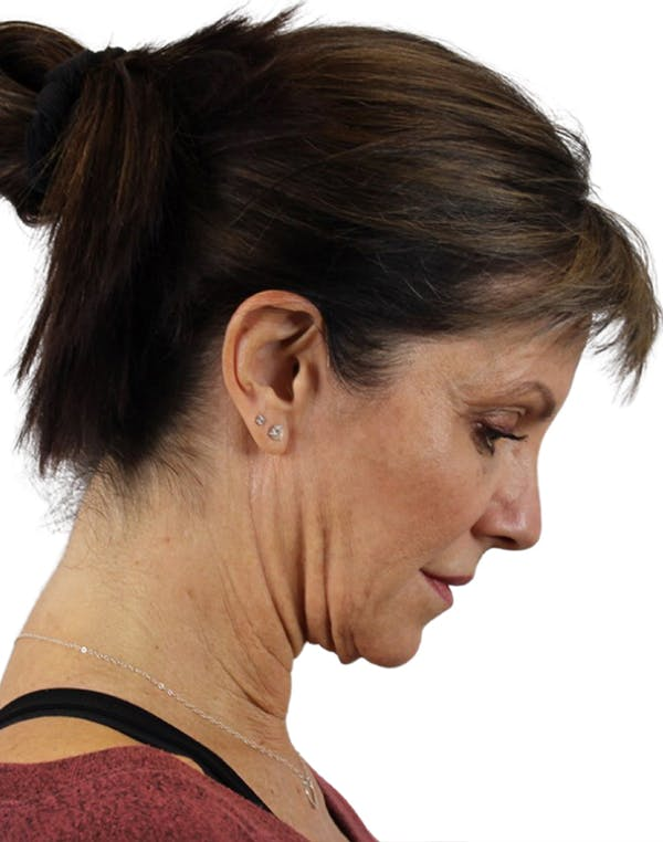 Facelift Gallery - Patient 24397141 - Image 7
