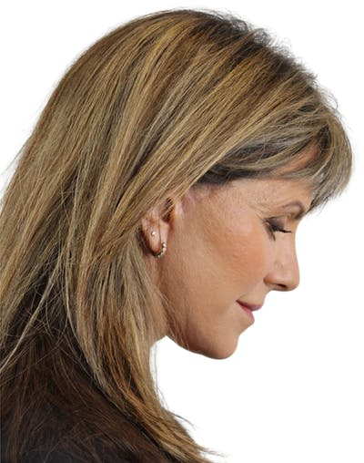 Facelift Gallery - Patient 24397141 - Image 8