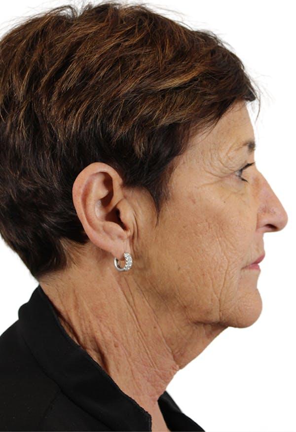 Facelift Gallery - Patient 37535053 - Image 3