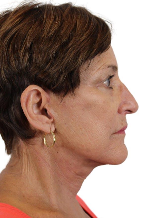 Facelift Gallery - Patient 37535053 - Image 4
