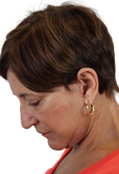 Facelift Gallery - Patient 37535053 - Image 8