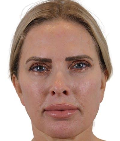 Sciton HALO Gallery - Patient 50517867 - Image 2