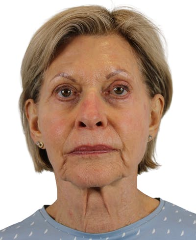 Facelift Gallery - Patient 50517879 - Image 1