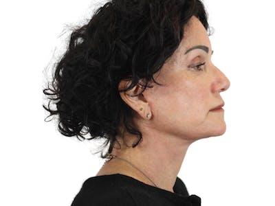 Facelift Gallery - Patient 53824270 - Image 6