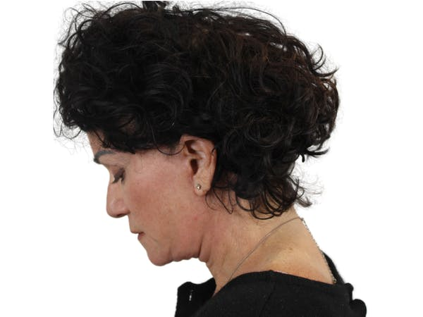 Facelift Gallery - Patient 53824270 - Image 8