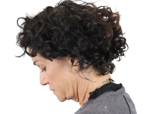 Facelift Gallery - Patient 53824270 - Image 7