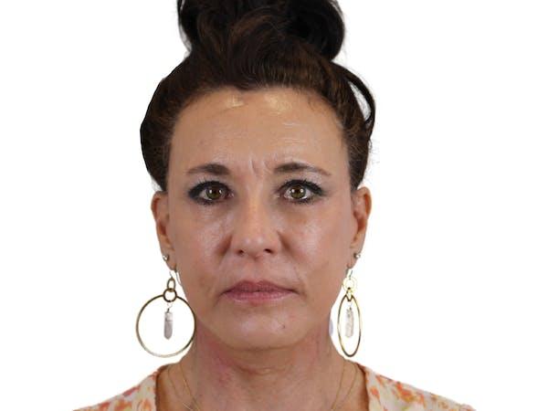Facelift Gallery - Patient 53824493 - Image 2