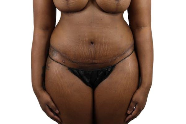 Abdominoplasty Gallery - Patient 53824845 - Image 2