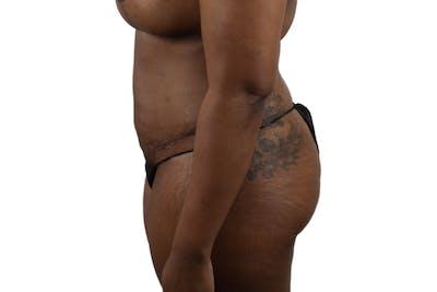 Abdominoplasty Gallery - Patient 53824845 - Image 4