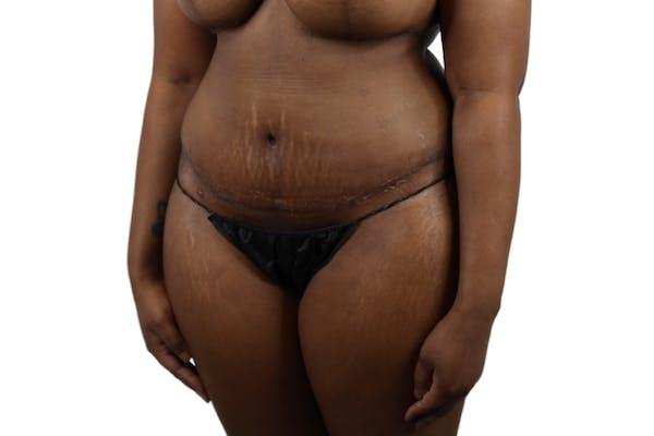 Abdominoplasty Gallery - Patient 53824845 - Image 6
