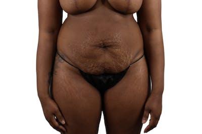 Abdominoplasty Gallery - Patient 53824845 - Image 1