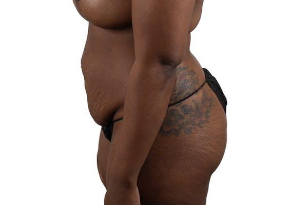 Abdominoplasty Gallery - Patient 53824845 - Image 3