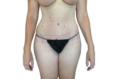 Abdominoplasty Gallery - Patient 53824876 - Image 2