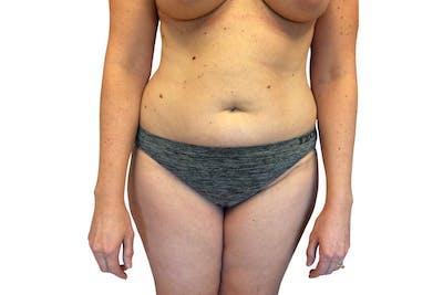 Abdominoplasty Gallery - Patient 53824876 - Image 1