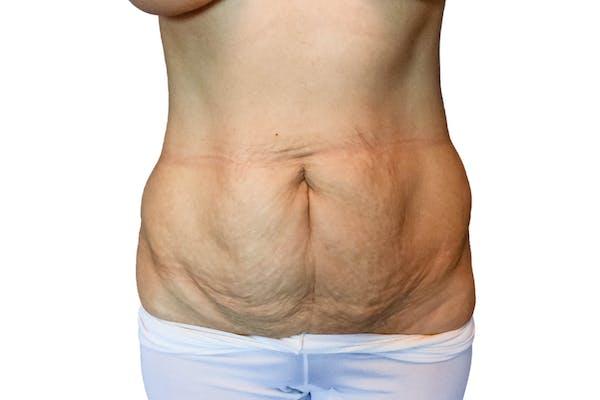 Abdominoplasty Gallery - Patient 53824988 - Image 1