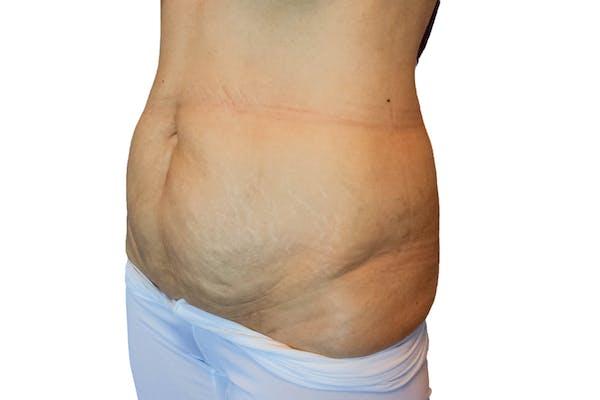 Abdominoplasty Gallery - Patient 53824988 - Image 3