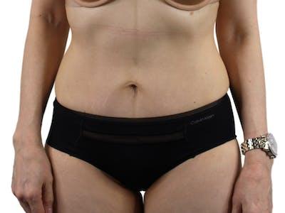 Abdominoplasty Gallery - Patient 53825108 - Image 2