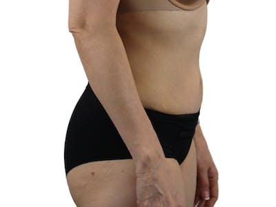 Abdominoplasty Gallery - Patient 53825108 - Image 6