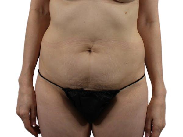 Abdominoplasty Gallery - Patient 53825108 - Image 1