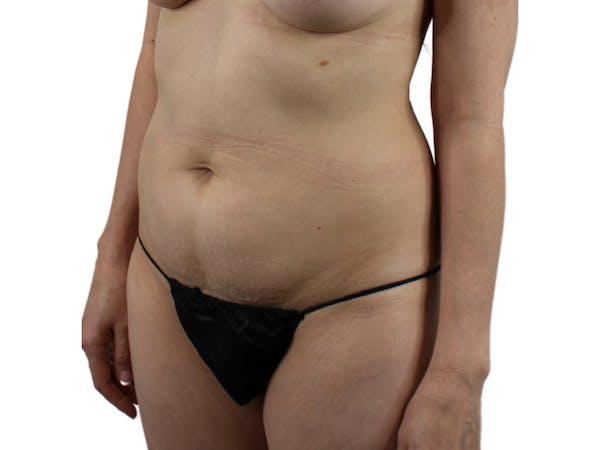 Abdominoplasty Gallery - Patient 53825108 - Image 3