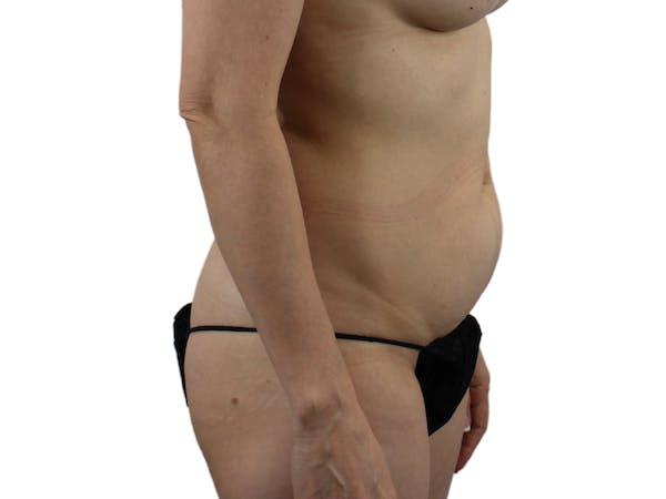 Abdominoplasty Gallery - Patient 53825108 - Image 5