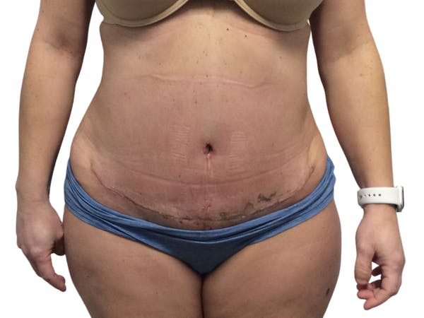 Abdominoplasty Gallery - Patient 53825156 - Image 2
