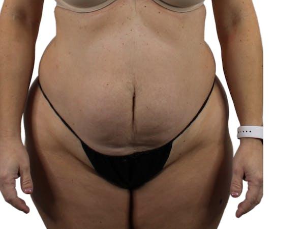 Abdominoplasty Gallery - Patient 53825156 - Image 1